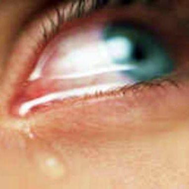 Симптомы болезней - Слезоточивость